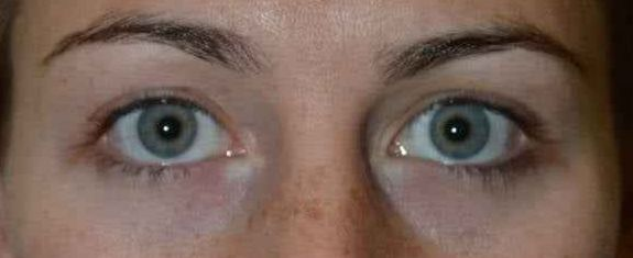 After Chalazion Removal