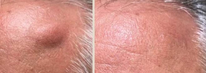 Lipoma Removal Before and After 2