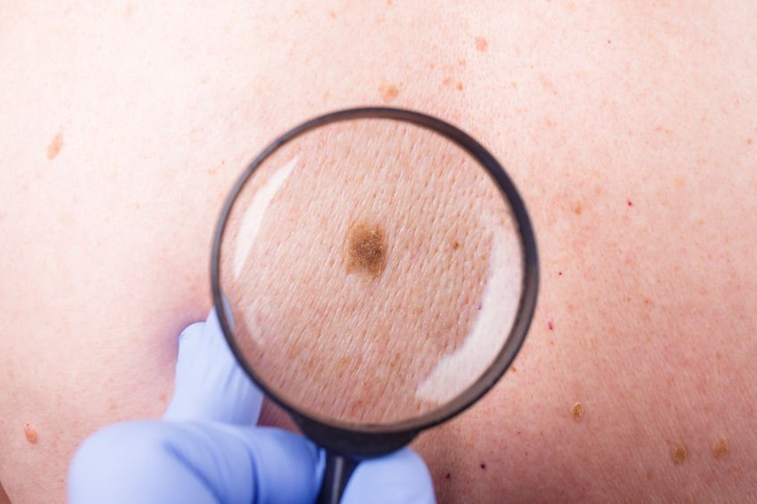 Birthmark and Mole Examination