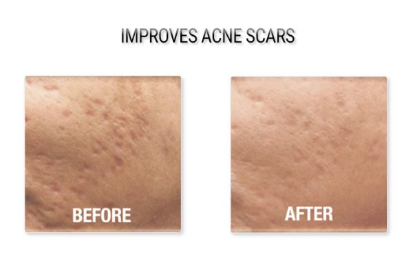 Acne Scar Treatment Before and After