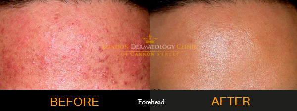 Acne Before and After on Forehead