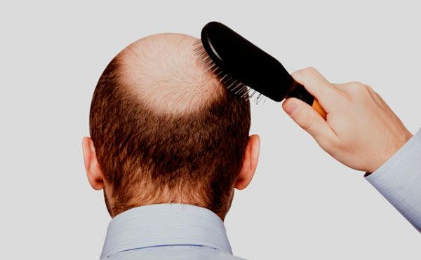 Hair Loss Dermatology London