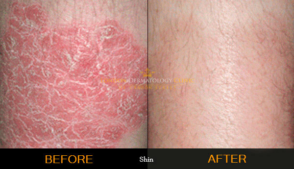 Psoriasis Treatment Before and After London