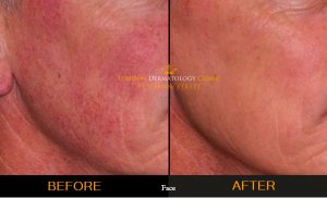 Rosacea Before and After London