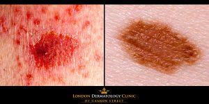 Skin Cancer Treatment London
