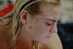 Skin Conditions Acne Treatment London 1