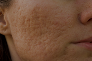 Skin Conditions Acne