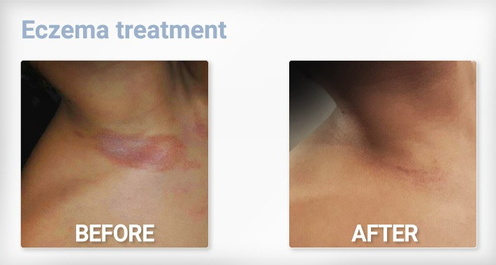 Before and After Eczema London 1