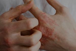 Eczema London 1