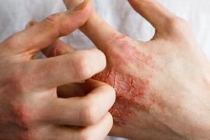Eczema London 2