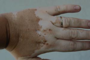 Vitiligo London 1