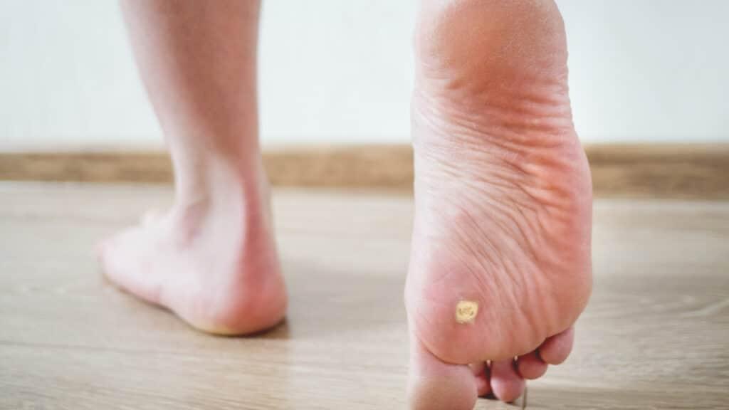 verrucas on sole of foot